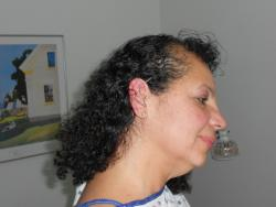 Tonja Henderson from Parma Ohio has needles placed in her ear as part of her acupuncture treatment for pain.