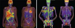 Images of tumors, courtesy of the National Cancer Institute.