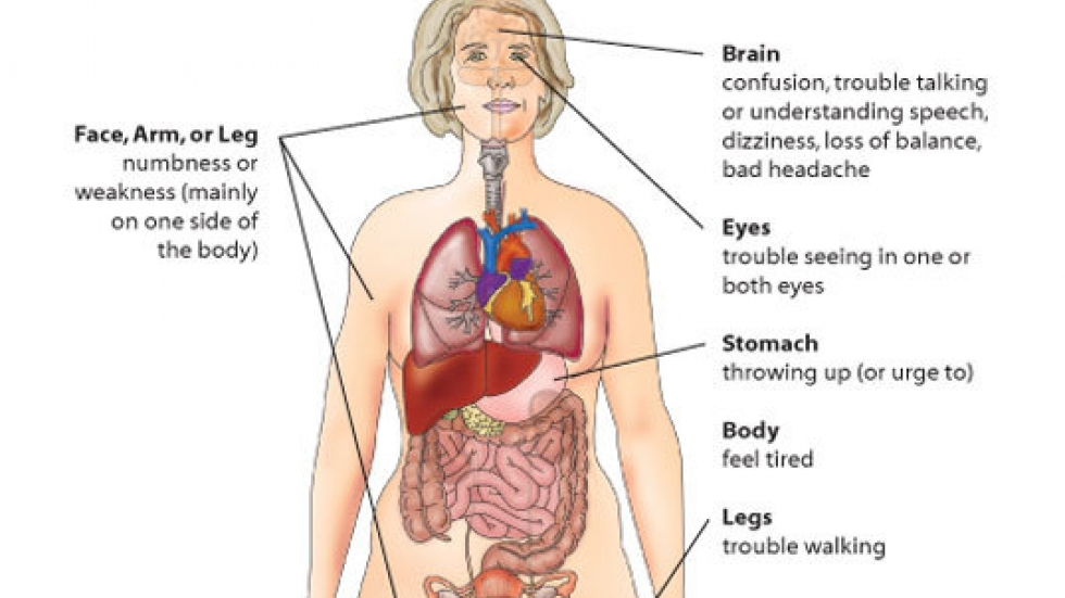 Stroke Signs.  Credit:  Centers for Disease Control and Prevention.