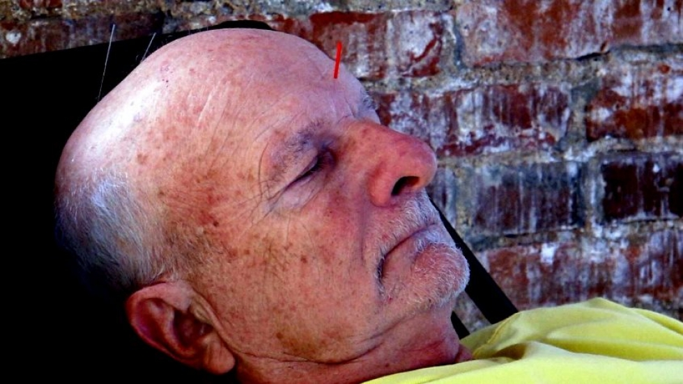 Acupuncture client relaxes (pic: Brian Bull)