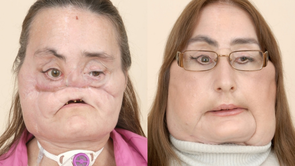 Before her face transplant Culp had multiple reconstructive surgeries with a poor outcome.