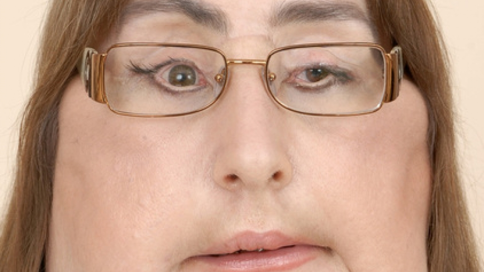46-year-old Connie Culp after her face transplant surgery.