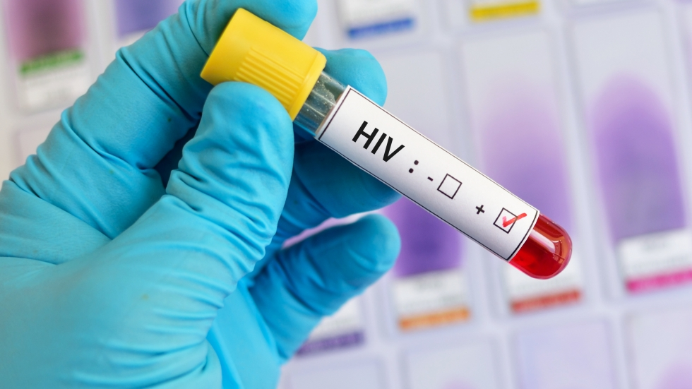 Cuyahoga County is one of 48 counties with a high rate of HIV transmission that will be targeted in Trump's new plan. (Photo: Jarun Ontakrai / Shutterstock)
