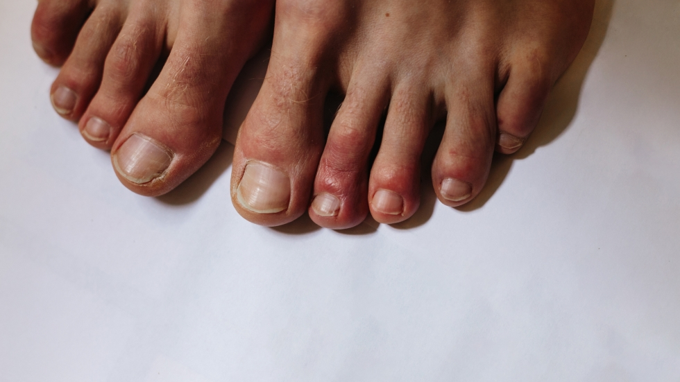 "Some COVID-19 patients have shown symptoms on their skin, such as small blisters on fingers and toes, commonly referred to as ""COVID toes."""